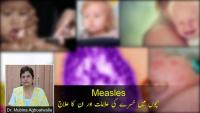 Measles - Symptoms, Diagnosis & Treatments by Dr Mubina Agboatwalla