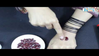 Sujok Therapy For Kidney By Dr Umm-e-Raheel