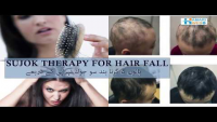 Sujok Therapy For Hair Fall By Dr Umm-e-Raheel