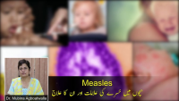 Measles - Symptoms, Diagnosis & Treatments by Dr Mubina Agboatwalla